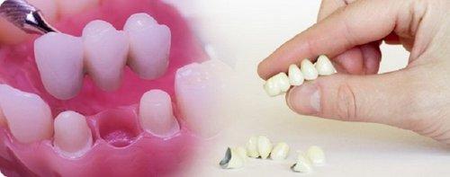 Частичное протезирование зубов - недостатки
