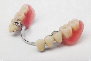 Частичное протезирование зубов