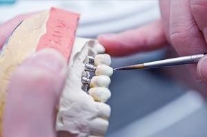 izgotovlenie-zubnyh-protezov1