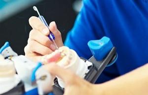 izgotovlenie-zubnyh-protezov3